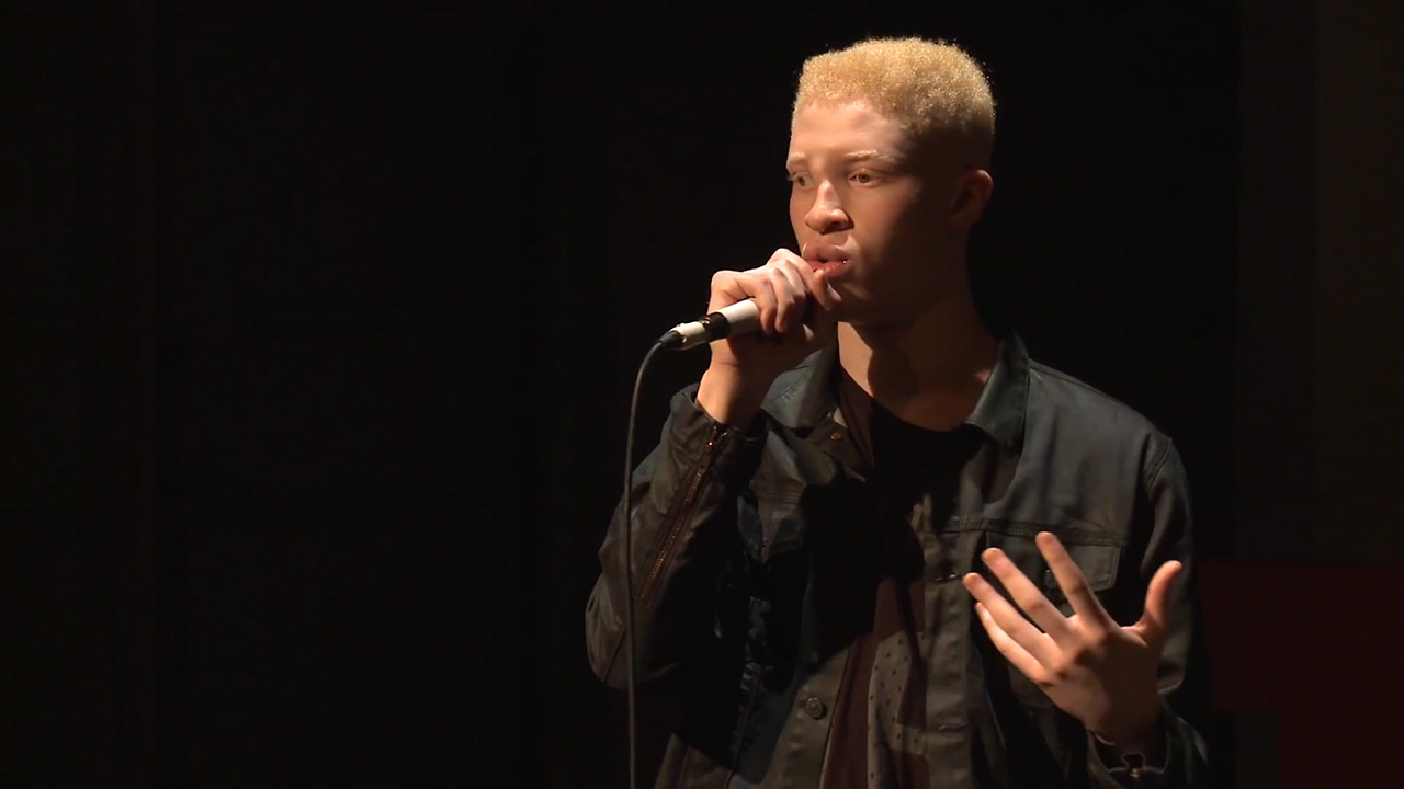 In My Skin I Win: Shaun Ross at TEDxHackney 2014 (Video still: youtube.com/TEDxTalks)